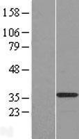 NBL1-08358 - C20orf111 Lysate