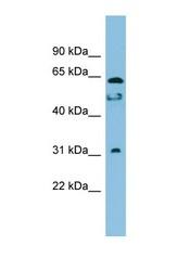 NBP1-57772 - C20orf132