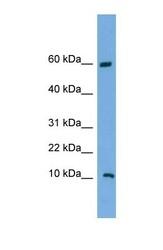 NBP1-70460 - C20orf144