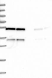 NBP1-91726 - C20orf72