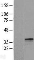 NBL1-15868 - C21orf18 Lysate