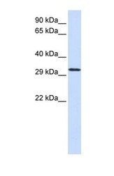 NBP1-56908 - C21orf2