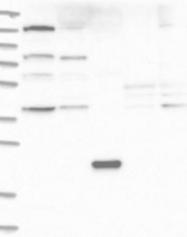 NBP1-85912 - C21orf58