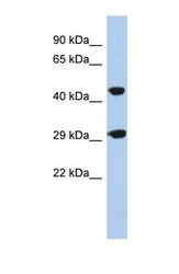 NBP1-70463 - C22orf25