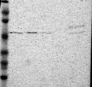 NBP1-83175 - C22orf28