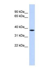 NBP1-70464 - PRR14L