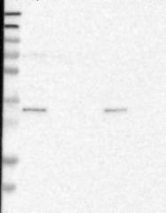 NBP1-93522 - C22orf36