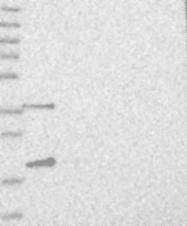 NBP1-82135 - C2orf43