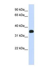 NBP1-57840 - C2orf47