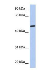 NBP1-56807 - C3orf62