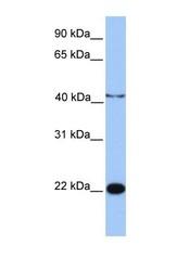 NBP1-70469 - C2orf68