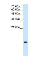 NBP1-56944 - BRICK1 / C3orf10