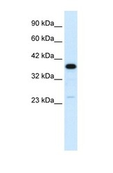 NBP1-58983 - C4b-binding protein beta