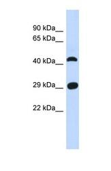 NBP1-56792 - C4orf22