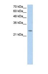 NBP1-60125 - C5orf4