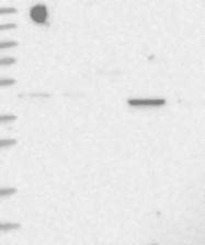 NBP1-94021 - C5orf44