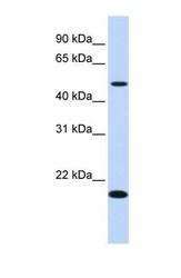 NBP1-70474 - C5orf55