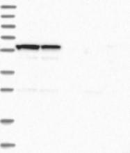 NBP1-88726 - C6orf118