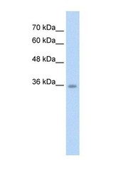 NBP1-57690 - C6orf134