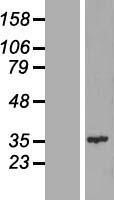 NBL1-09092 - CENP-Q  Lysate