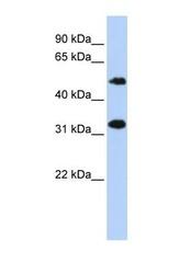 NBP1-70755 - C6orf150