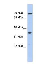 NBP1-56949 - C6orf154