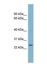 NBP1-56604 - C7orf29