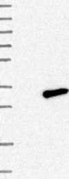 NBP1-86035 - C7orf29