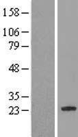NBL1-12606 - C7orf61 Lysate