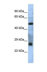 NBP1-70480 - C7orf62