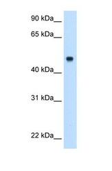 NBP1-70481 - Complement C8