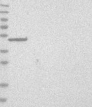NBP1-93688 - C9orf114
