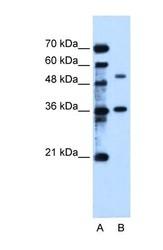 NBP1-60059 - TMEM8B