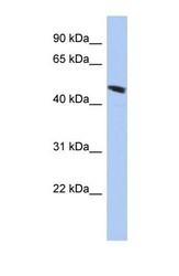 NBP1-56828 - C9orf68