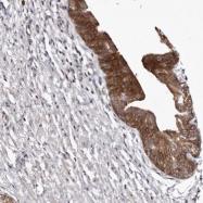 NBP1-88241 - Mucin-16 / CA125