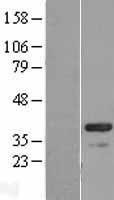 NBL1-08624 - CABP4 Lysate
