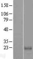 NBL1-08625 - CABP7 Lysate