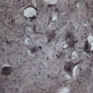 NBP1-20109 - CACNA1I