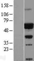 NBL1-08630 - CACNB4 Lysate