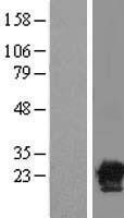 NBL1-08636 - CACYBP Lysate
