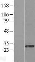 NBL1-08637 - CACYBP Lysate