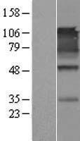 NBL1-08638 - CADM1 Lysate