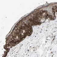 NBP1-85643 - CGRP type 1 receptor / CRLR
