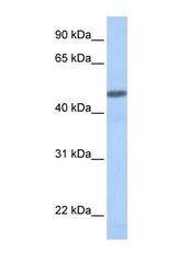 NBP1-59073 - CGRP type 1 receptor / CRLR