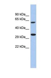 NBP1-70484 - CALHM3 / FAM26A