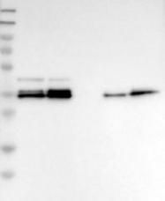 NBP1-88802 - CALHM3 / FAM26A