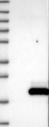 NBP1-84437 - Calmodulin-like protein 5