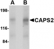 NBP1-76898 - CADPS2 / CAPS2