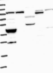 NBP1-85855 - Calcyphosin-2