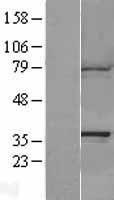 NBL1-08690 - CAPZA1 Lysate